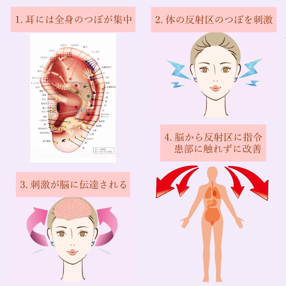 耳介療法の論理システム図